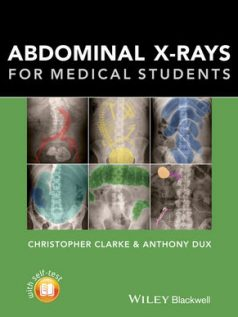 Abdominal-X-rays-for-Medical-Students