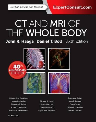 Ebook CT-and-MRI-of-the-Whole-Body-2-Volume-Set-6e