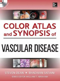 Ebook Color-Atlas-and-Synopsis-of-Vascular-Disease-1e