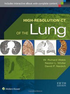Ebook High-Resolution-CT-Lung-Richard-Webb