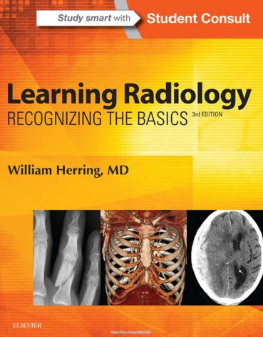 Learning-Radiology-Recognizing-the-Basics-3rd