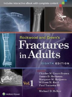 Ebook Rockwood-and-Greens-Fractures-in-Adults-8th-Edition