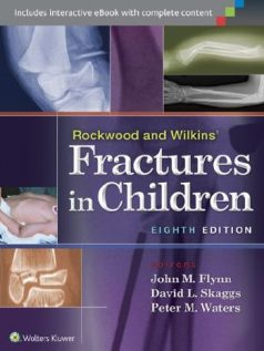 Ebook Rockwood-and-Wilkins-Fractures-in-Children-8th-Edition