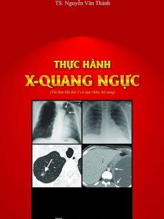thuc-hanh-xquang-nguc