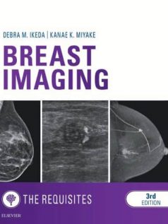 Breast-Imaging-The-Requisites-3e